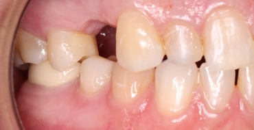 Replacing a Tooth With a Bridge - Before