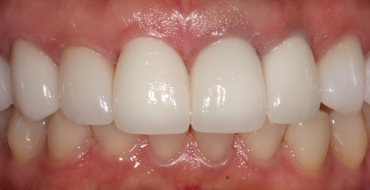 Improving Tooth Color By Replacing Old, Dark Crowns - After
