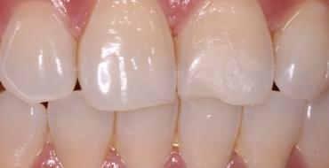 Restoring a Front Tooth With Simple Bonding - Before
