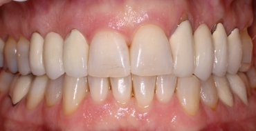 Invisalign 1.5 Year Case - After