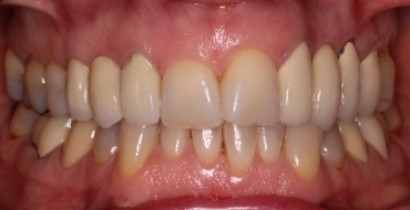 Invisalign 1.5 Year Case - Before