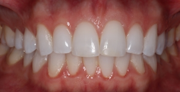 Invisalign 5 Month Case - Before
