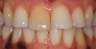Improving Tooth Color With a Crown - Before