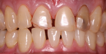 Improving Appearance and Health By Removing Infected Tooth and Placing Bridge - Before
