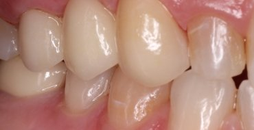 Replacing a Tooth With a Bridge - After