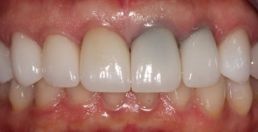 Improving Tooth Color By Replacing Old, Dark Crowns - Before