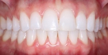Invisalign 5 Month Case - After