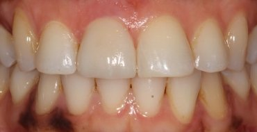 Improving Tooth Color With a Crown - After