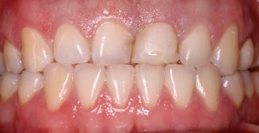 Improving Appearance and Strength With Crowns - Before