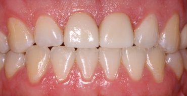 Improving Appearance and Strength With Crowns - After