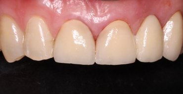 Improving Appearance and Health By Removing Infected Tooth and Placing Bridge - After