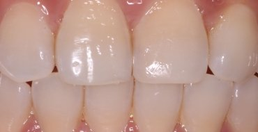 Restoring a Front Tooth With Simple Bonding - After